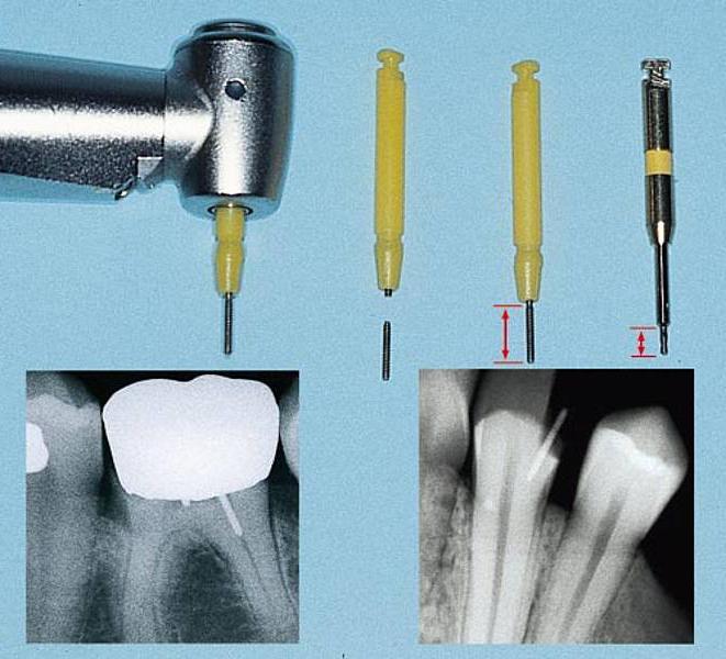 штифты в стоматологии фото