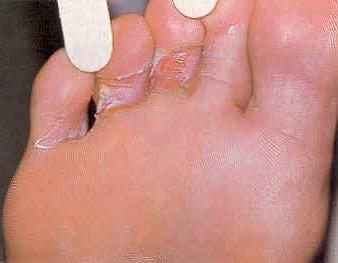 Грибковые заболевания: особенности профилактики и лечения
