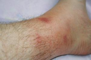 Периодическая болезнь: симптоматика и лечение