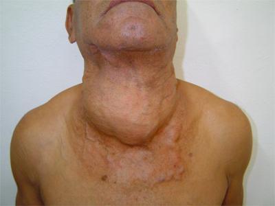 узлы в грудной железе