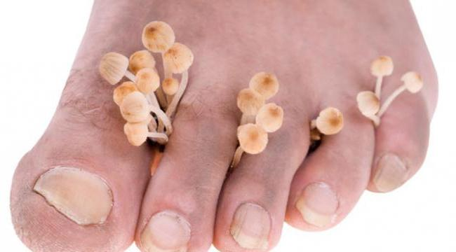 грибок стопы лечение