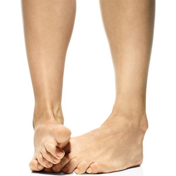 Растут косточки на ногах что делать народные средства