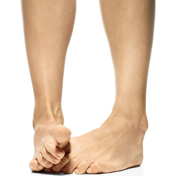 Если растёт косточка на ноге