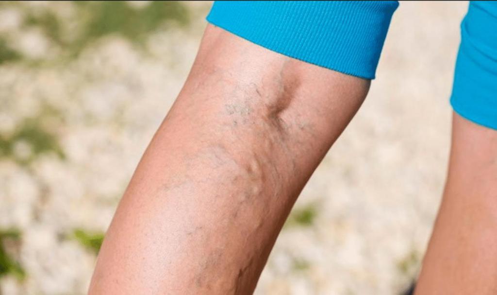 Тромбофлебит руки симптомы фото и лечение
