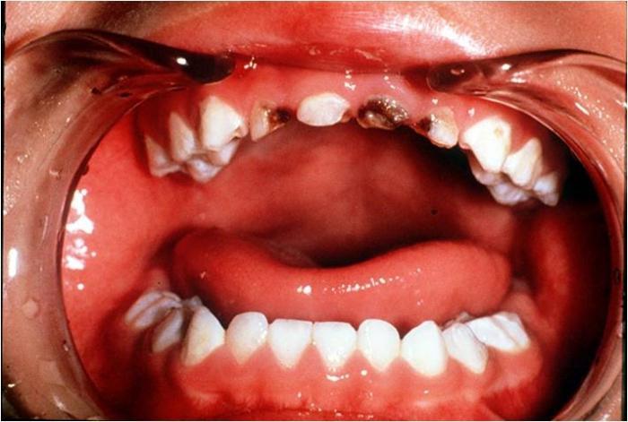 лекарство очистки организма от паразитов