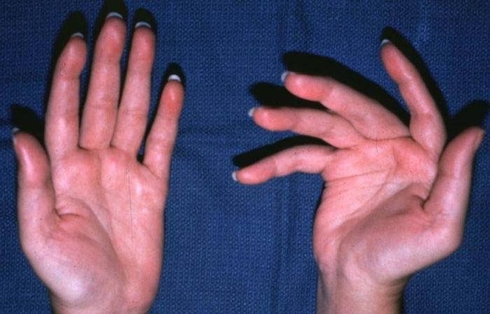 Признаки артрита кистей рук
