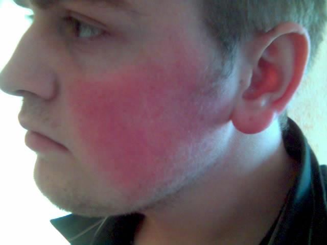 Как лечить красные пятна на шее при волнении