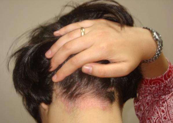 Диета при псориазе волосистой части головы - как правильно питаться