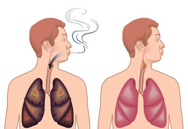 Как вылечить грудному ребёнку кашель