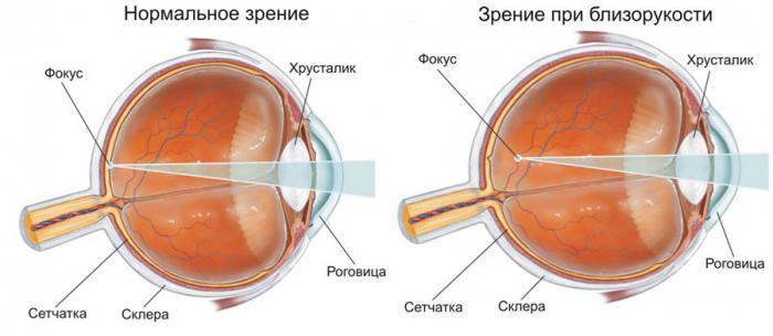 Линзы ухудшают зрение