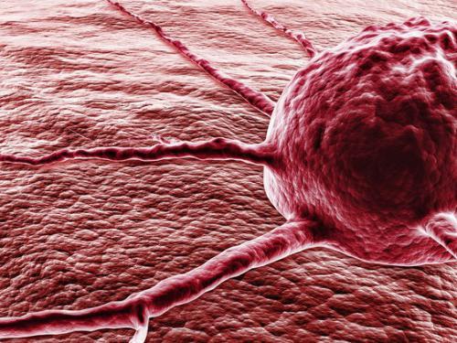 Смотреть болезнь рак