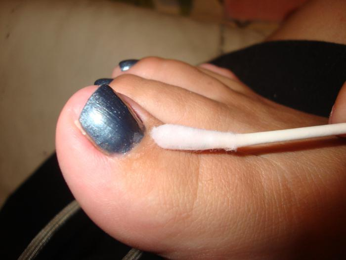 применение перекиси водорода при лечении грибка ногтей
