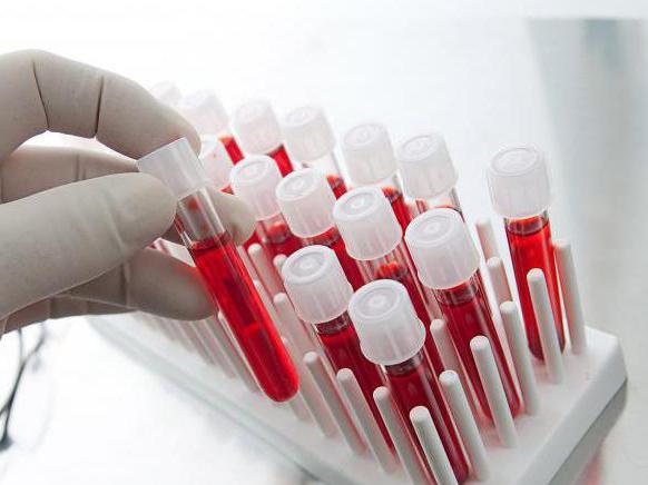 Расшифровка лейкоцитов в анализе крови