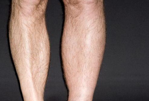 как распознать тромб в ноге фото