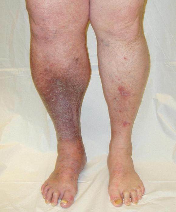 Тромб на ноге лечение в домашних условиях 77