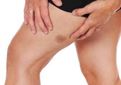 Операция на вены на ногах последствия отзывы