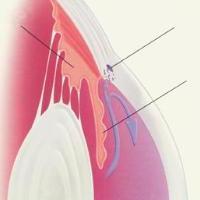 Первые признаки глаукомы и лечение