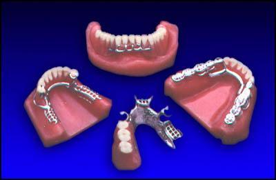 виниры на зубы вредно ли