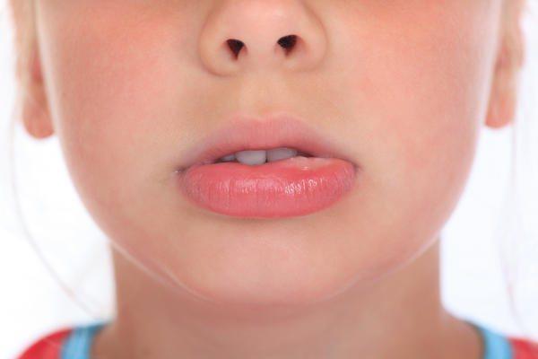 Если у ребенка опухла верхняя губа причина 153