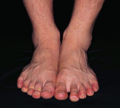 стопа правой ноги болит