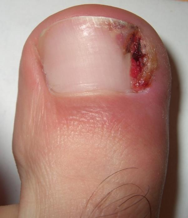 Ногти на ногах врастают методы