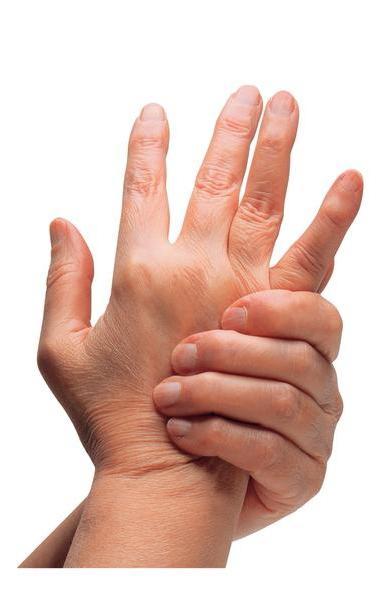 Если свело пальцы на руке, нужно установить причины