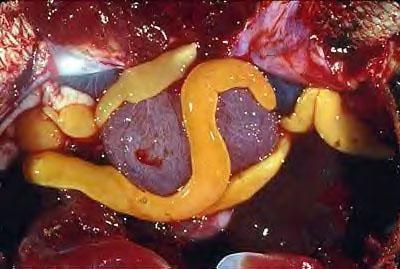 Бычьи цепни: диагностика и лечение