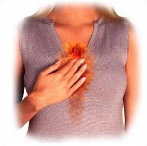 Симптомы сердечного кашля у женщин