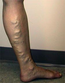 болезни ступней ног фото