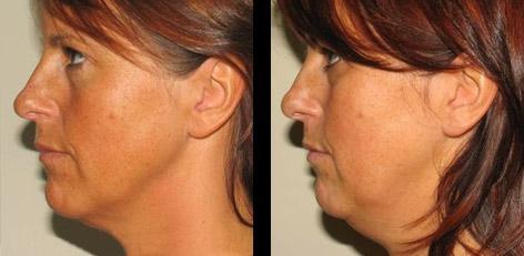 Подтяжка лица без операции как инновация в косметологии
