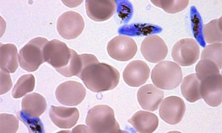 размножение малярийного паразита в крови человека