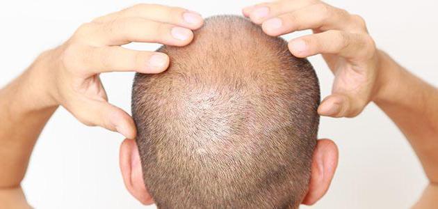 """Средство """"Азуми"""" для волос: отзывы врачей и покупателей"""