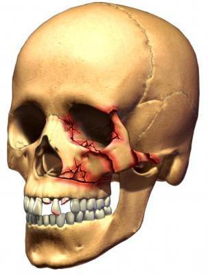 первая помощь при черепно мозговой травме