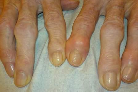 узелковый полиостеоартроз