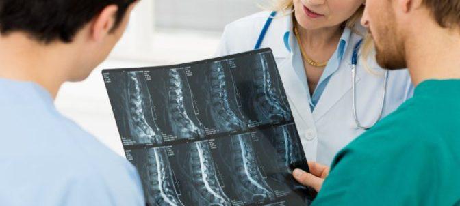консультация с врачом при остеохондрозе