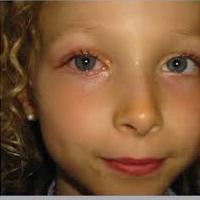 у ребенка покраснел глаз