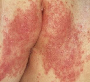 гормональные препараты для увеличения грудины