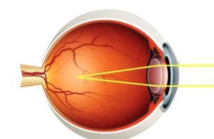 Отзывы об лазерной коррекции зрения на воровского