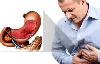 признаки язвы желудка у взрослых