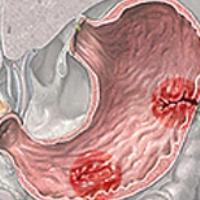 Симптомы гастрит и язва желудка