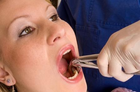 киста под зубом