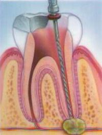 киста десны зуба