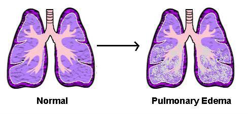 Отёк лёгких — Википедия