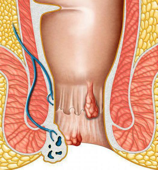 Анальный секс боль в анусе воспаление