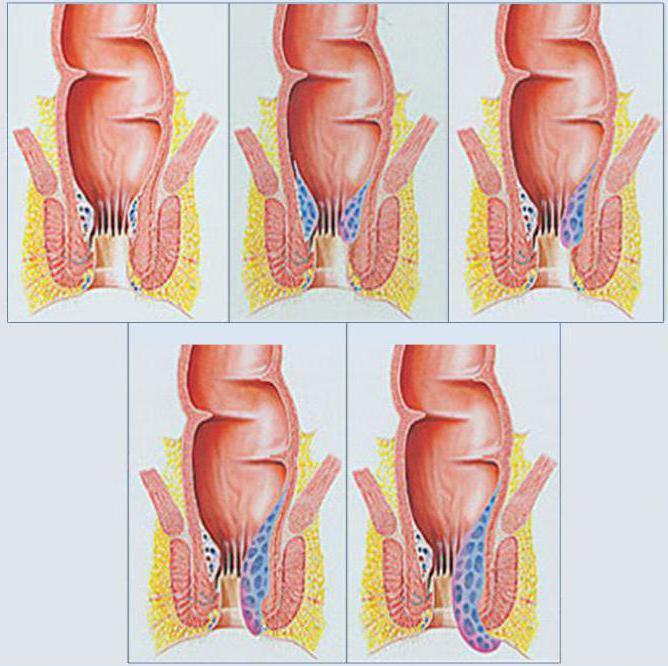 нанесете один синеют половые губы при беременности немаловажным