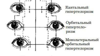 орбитальный гипертелоризм