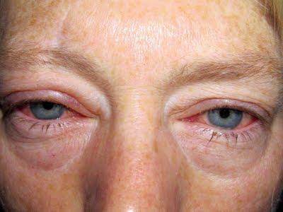аллергия глаза чешутся и опухают чем лечить