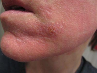 красное пятно на лице шелушится