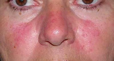 красные пятна на лице чешутся
