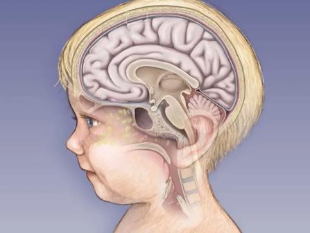 последствия менингита у детей